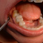 Amalgams After Removal and Replaced with Composite 2