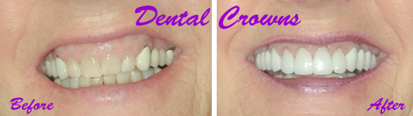 Dental Crown Procedure Explained for Patients - Washington Township