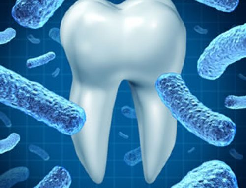 Laser Bacterial Reduction Therapy: Advanced Care for Periodontal Disease