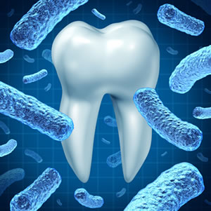 Laser Bacterial Reduction Therapy for Periodontal Disease - Shelby Twp., MI