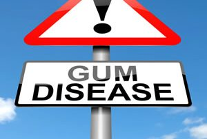 Periodontal Disease Treatment - Shelby Twp., MI