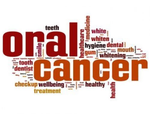 VELScope Screenings for Oral Cancer