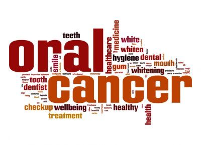 Oral Cancer Screening - Shelby Twp., MI