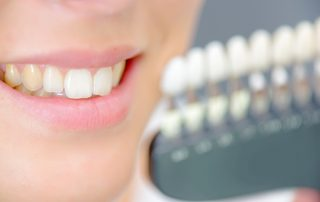 Causes of Stained Teeth - White Teeth Shelby Twp Dentist