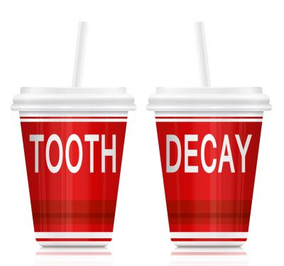 Childrens Tooth Decay - Kids Dentist in Shelby Twp., MI