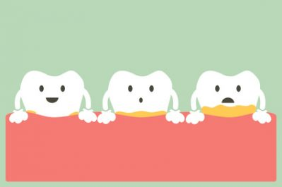What Every Patient Needs to Know About Gum Disease