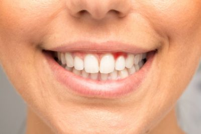 The Importance of Having Healthy Gums