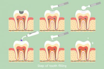 Shelby Twp. Dentist Explains Composite Resins