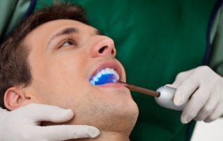 Tackling Tough Dental Sealant Questions
