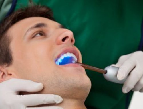 Tackling Tough Dental Sealant Questions