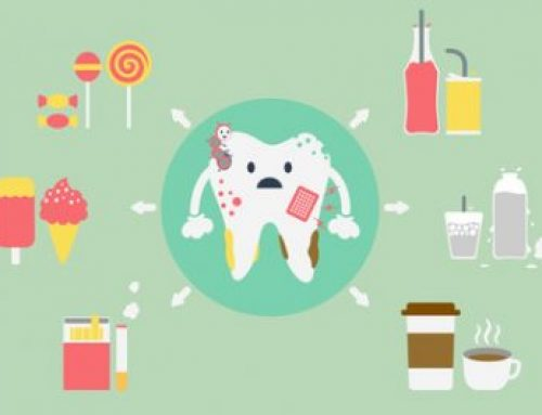 What Can I Do to Prevent Dental Problems?